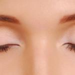 ภาวะถุงใต้ตาหย่อนคล้อย ต้องผ่าตัดถุงใต้ตา