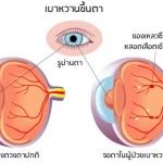 โรคเบาหวานขึ้นตา?